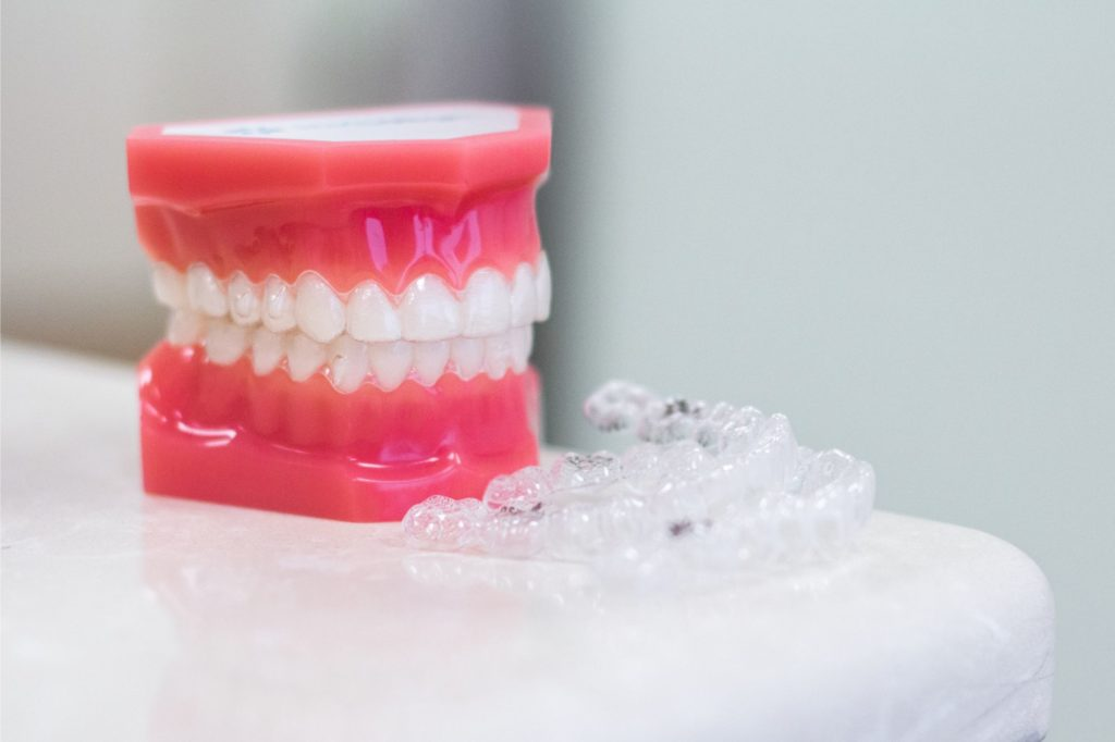 Braces model and clear aligners